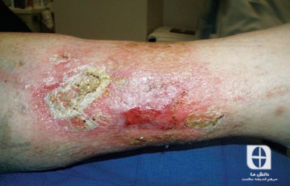 Edema due to chronic venous insufficiency
