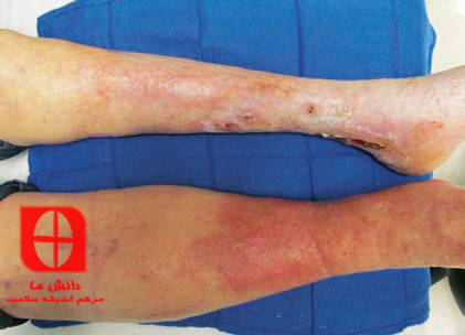 Edema due to obstruction
